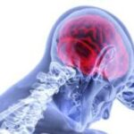 What is Brain Injury