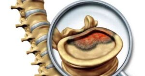 Spinal tumor cancer treatment